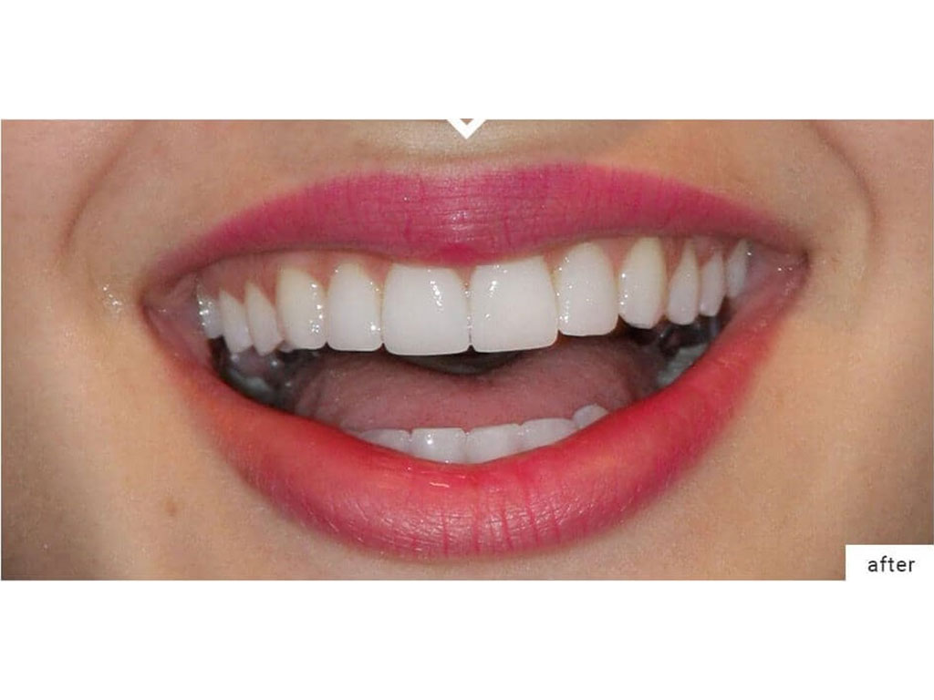 Dental Packages | cosmetic dentistry in Iran | Healtha - Medical Tourism in Iran