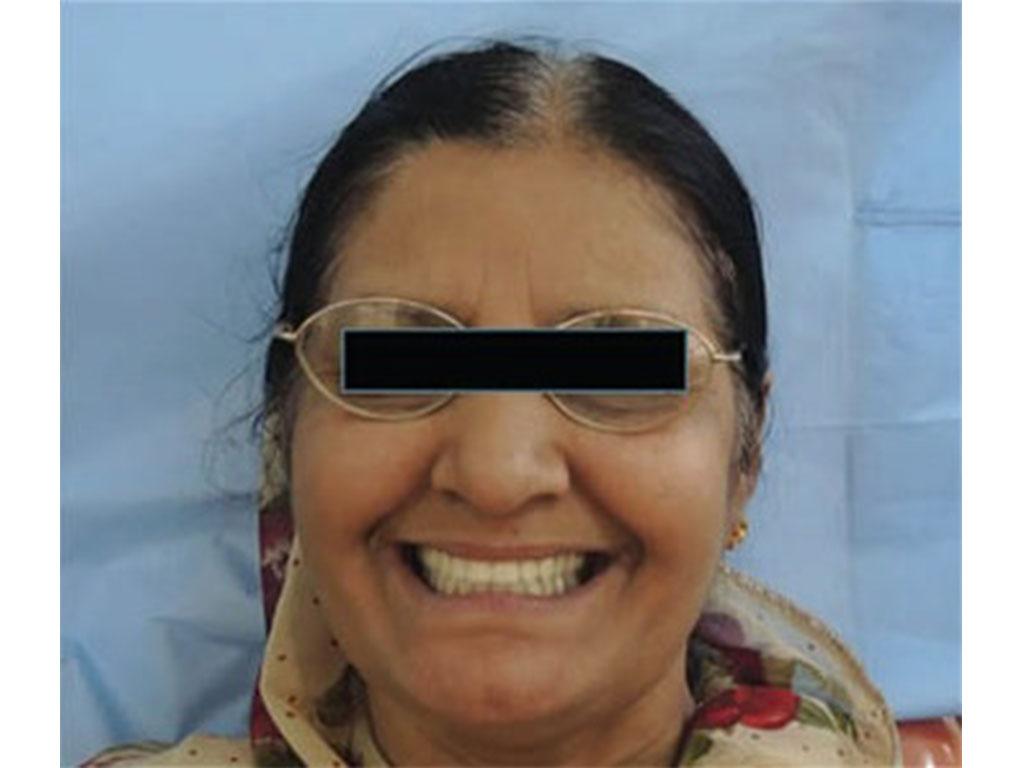 طقم أسنان إصطناعية | Healtha - Medical Tourism in Iran
