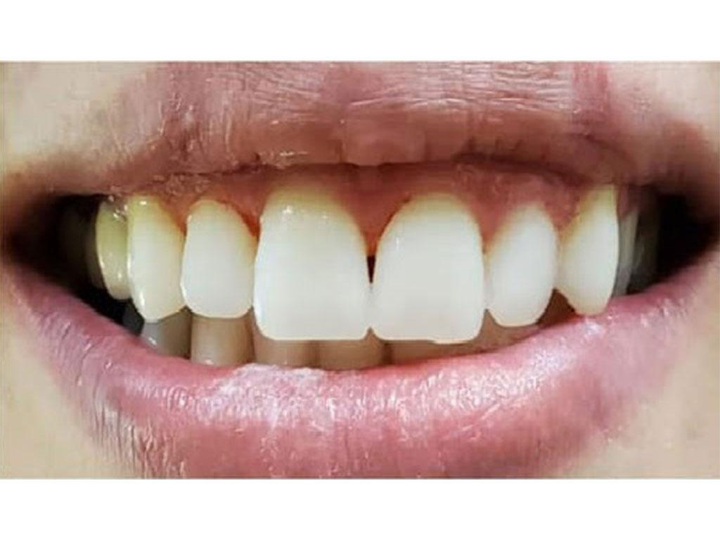 تبيض و تحجیم الاسنان | Healtha - Medical Tourism in Iran