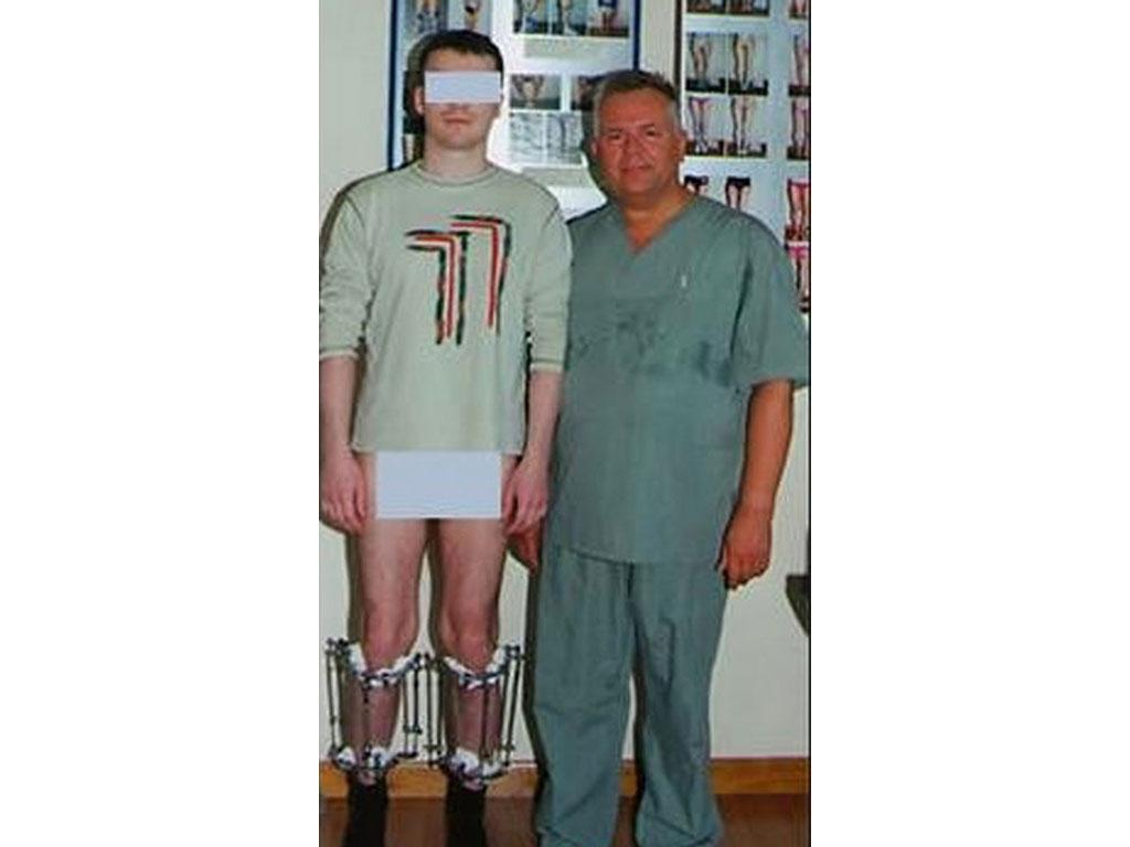 جراحة زيادة الطول | Healtha - Medical Tourism in Iran