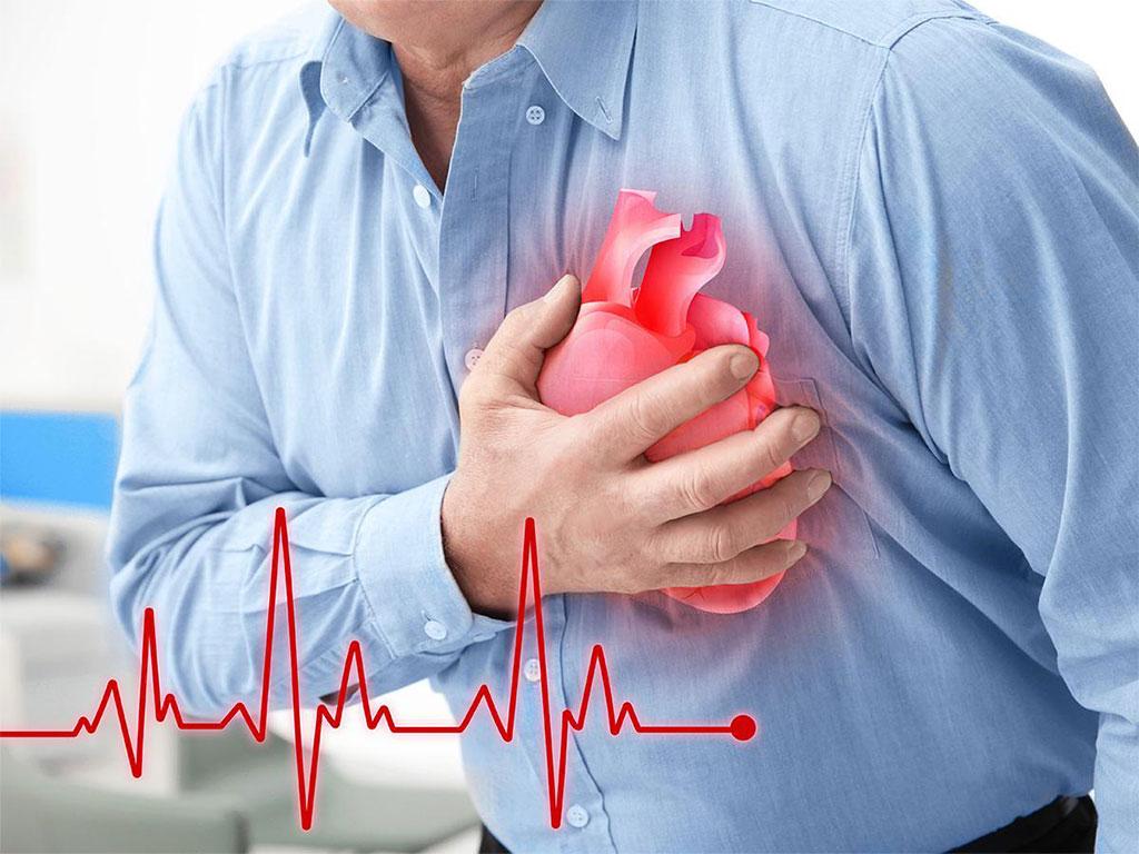عملیة القلب المفتوح   Healtha - Medical Tourism in Iran