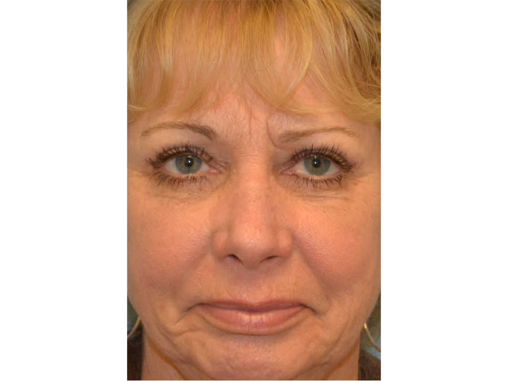 Blepharoplasty Packages   Healtha - Medical Tourism in Iran
