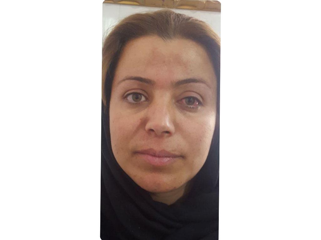 الحول | Healtha - Medical Tourism in Iran