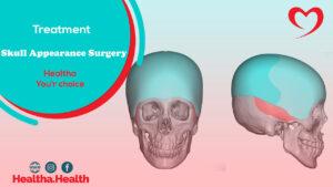 Skull Appearance Surgery