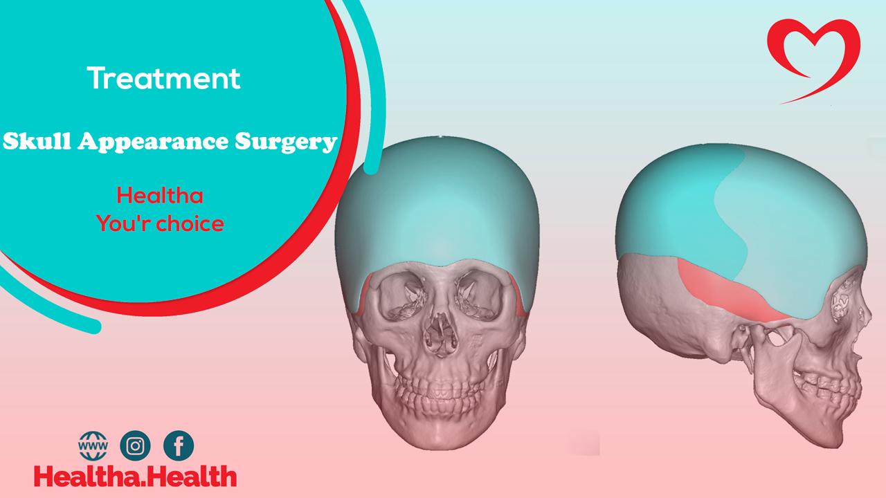 جراحة مظهر الجمجمة