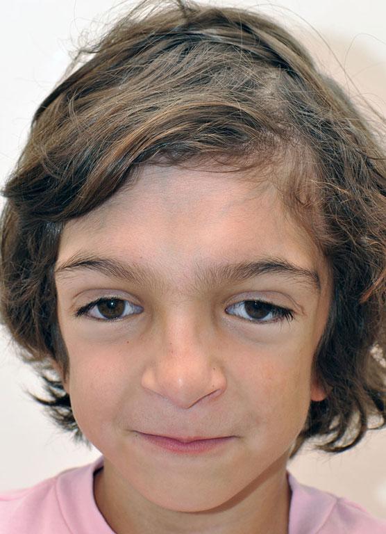 crouzon syndrome treatment in Iran