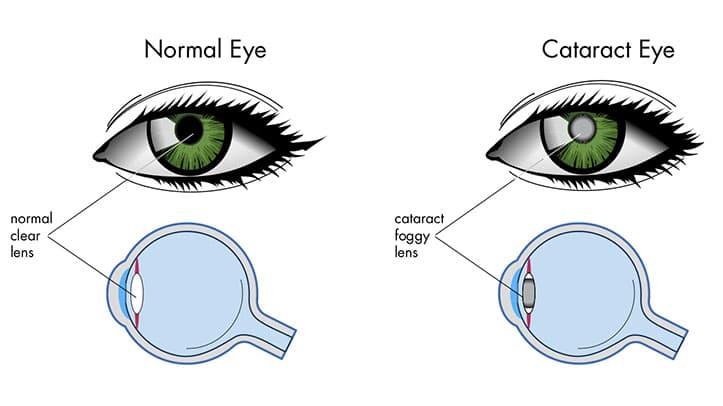 علاج إعتام عدسة العين في إيران