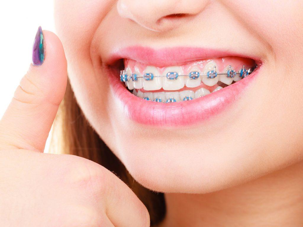 Orthodontics-Photo-1200